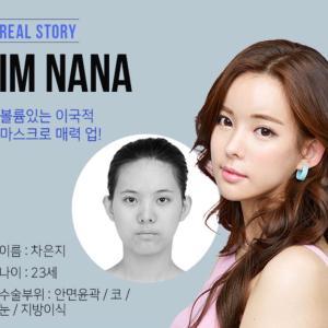 [韓国美容整形]ブラウン美容外科で異国情緒漂う美人誕生のREAL STORY♡