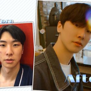 [韓国美容整形]DA美容外科で鼻だけの手術でイケメン度がUPのREAL STORY♡