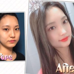 [韓国美容整形]id美容外科でより可愛く綺麗になった彼女のREAL STORY♡