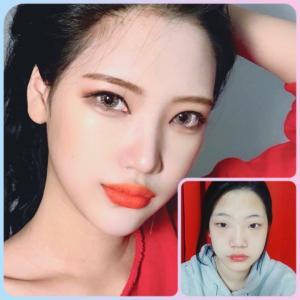 [韓国美容整形]DA美容外科でカッコよくも綺麗に変身した女性のREAL STORY♡♡