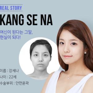 [韓国美容整形]ブラウン整形外科の小顔整形REAL STORY♡