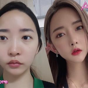 [韓国美容整形]DA美容外科で透明感溢れる美女誕生のREAL STORY♡