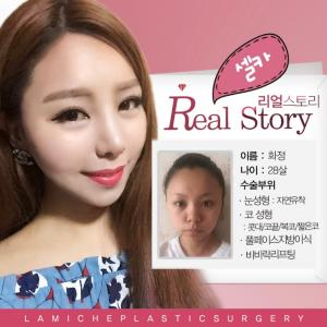 [韓国美容整形]ラミチェ美容外科で生まれ変わった中国のスターのREAL STORY♡