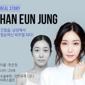 [韓国美容整形]ブラウン整形外科で冴えない印象が大変身のREAL STORY♡