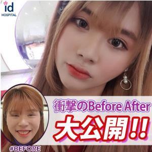 [韓国美容整形]id美容外科で自信を取り戻したREAL STORY♡
