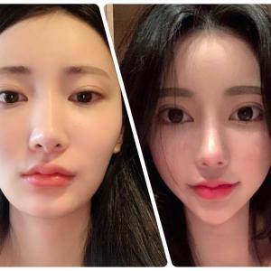 [韓国美容整形]DA美容外科で滑らかフェイスラインに大変身の美女♡