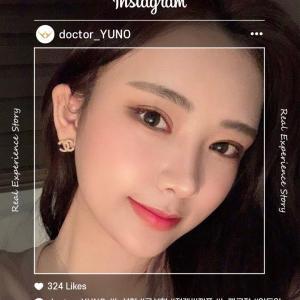 [韓国美容整形]ユノ整形外科で柔らかいイメージに変身のREAL STORY♡