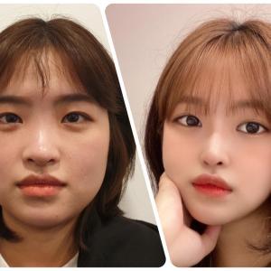 [韓国美容整形]DA美容外科のアカ抜け大成功のREAL STORY♡