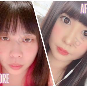 [韓国美容整形]id美容外科で大変身!日本人モニターのREAL STORY♡