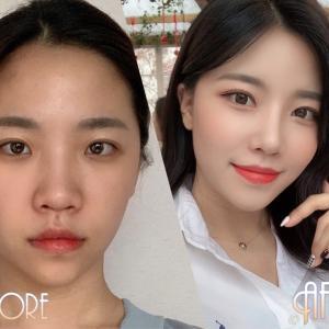 [韓国美容整形]DA美容外科で美人度UPのREAL STORY♡