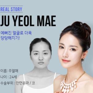 [韓国美容整形]ブラウン整形外科で小顔美人になったREAL STORY♡