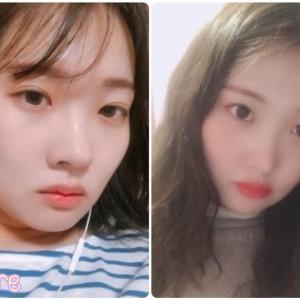 [韓国美容整形]バノバギ整形外科で滑らか輪郭に変身したREAL STORY♡
