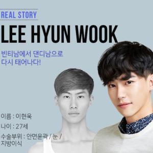 [韓国美容整形]ブラウン整形外科でイケメンになり過ぎ⁉︎REAL STORY♡