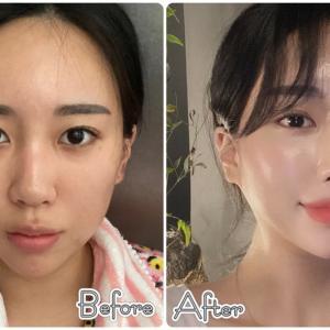 [韓国美容整形]DA美容外科で綺麗なお姉さんに大変身のREAL STORY♡