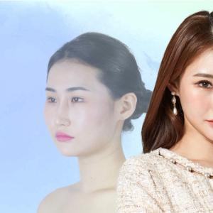 [韓国美容整形]バノバギ整形外科の優しい雰囲気に変身のREAL STORY♡