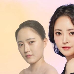 [韓国美容整形]バノバギ整形外科の輪郭手術で大変身のREAL STORY♡