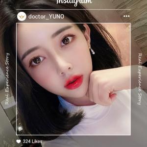 [韓国美容整形]ユノ整形外科でお人形さんみたいに大変身のREAL STORY♡