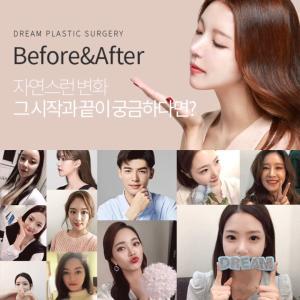 [韓国美容整形」ドリーム整形外科のBefore&After集☆