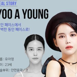 [韓国美容整形]ブラウン整形外科でより綺麗になったREAL STORY♡