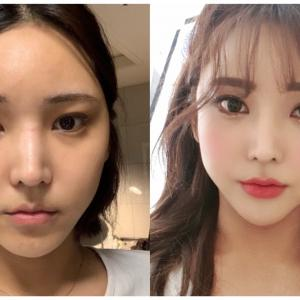 [韓国美容整形』DA美容外科でアイドルみたいな可愛さにREAL STORY♡
