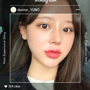 [韓国美容整形]ユノ整形外科でアイドルみたいに可愛くなったREAL STORY♡