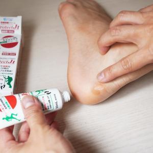 革靴の靴擦れにはプロテクトジェイワン皮膚保護クリームが最強だった。