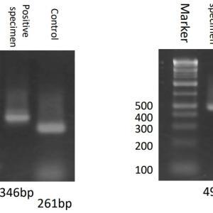 【読者投稿】PCRは本当に大変!地方衛生研に感謝を