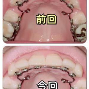 調整(上)9回目*☻*(下)7回目〜奥歯の外側にも装置つけられた〜