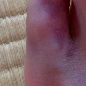 母ブタさんに足の指を踏まれた