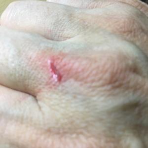 痛くもない、指の怪我