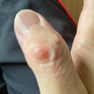 指の診察で言われた事は、