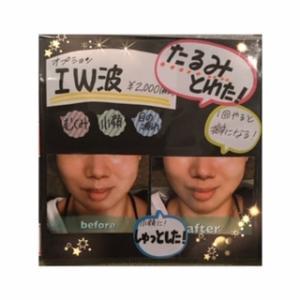 中周波小顔マッサージ(I.W波)