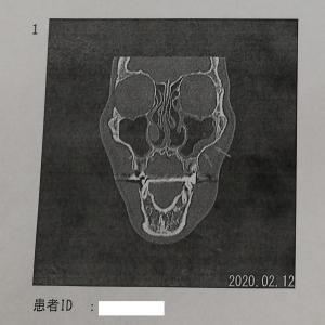 あごが腫れた その後 画像診断