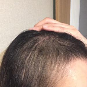治療後 初めてのヘアカラー