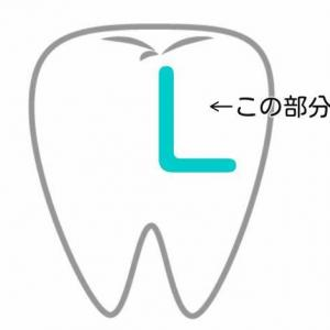 【悲報】前歯のうちの1本の1/4が突如欠ける