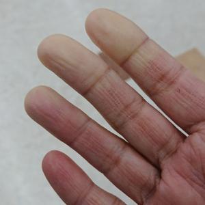 膠原病のレイノー症状
