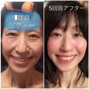 異物注入はしぼみ、皮がのびます!   顔が変化してしまいます!