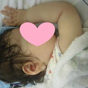 子どもの発熱の原因は溶連菌感染でした