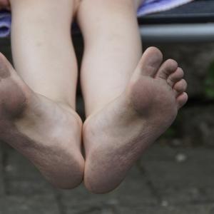 雨に濡れた靴でわかる足の状態