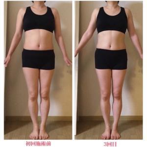 ダイエット目的なのに歩き方もきれいになる施術
