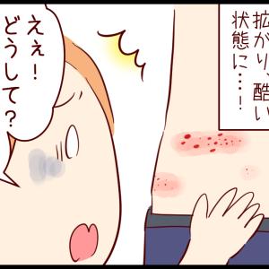 発疹の経過と原因 ① 〜水ぶくれどうする?〜