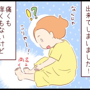 シューズと色素性紫斑(?)