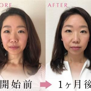 人気記事〜肌がくすむ、顔の輪郭がボヤけてきたお悩み〜