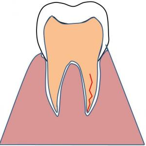 歯が割れてたよぉ(TT