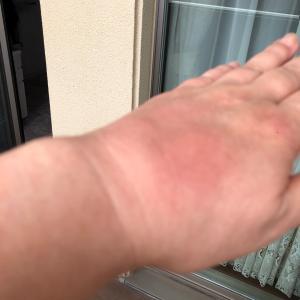 腫れ対策❤️リウマチや掌蹠膿疱症骨関節炎