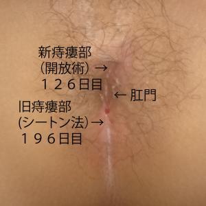 痔瘻根治手術 1-107 痔瘻根治手術 2-52