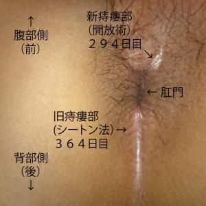 痔瘻根治手術 1-113 痔瘻根治手術 2-58