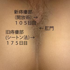 痔瘻根治手術 1-104 痔瘻根治手術 2-49