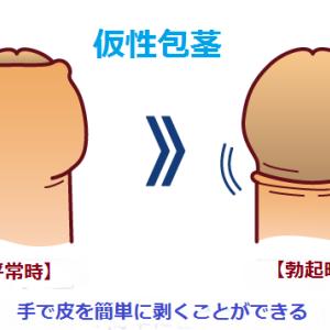 仮性包茎について 上野クリニックに行く前にあなたの症状は?