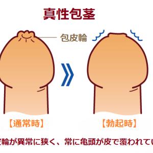 真性包茎について 上野クリニックに行く前にあなたの症状は?